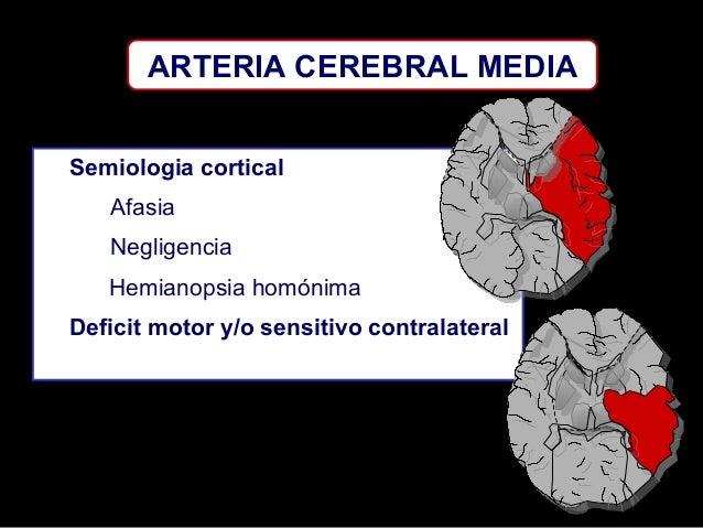 ARTERIA CEREBRAL MEDIA Semiologia cortical Afasia Negligencia Hemianopsia homónima Deficit motor y/o sensitivo contralater...