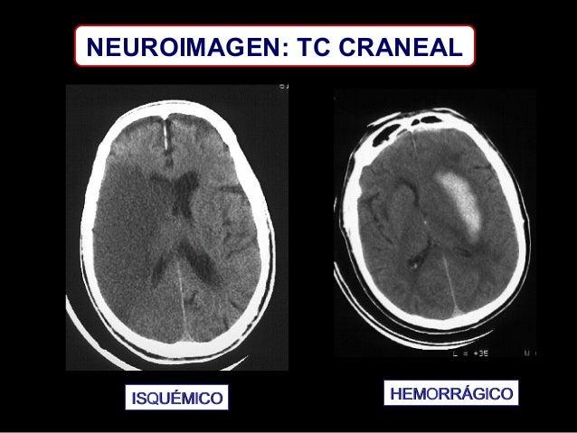 NEUROIMAGEN: TC CRANEAL  ISQUÉMICO  HEMORRÁGICO