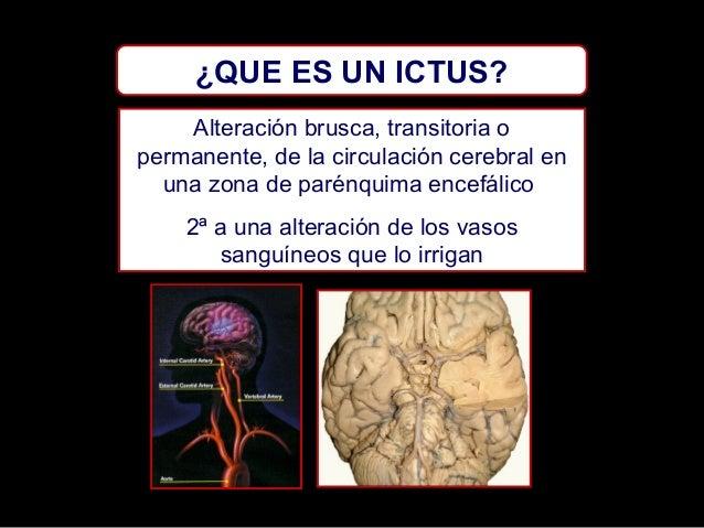 ¿QUE ES UN ICTUS? Alteración brusca, transitoria o permanente, de la circulación cerebral en una zona de parénquima encefá...