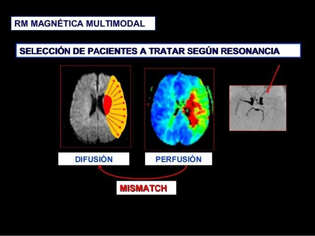 RM MAGNÉTICA MULTIMODAL SELECCIÓN DE PACIENTES A TRATAR SEGÚN RESONANCIA  DIFUSIÓN  PERFUSIÓN  MISMATCH