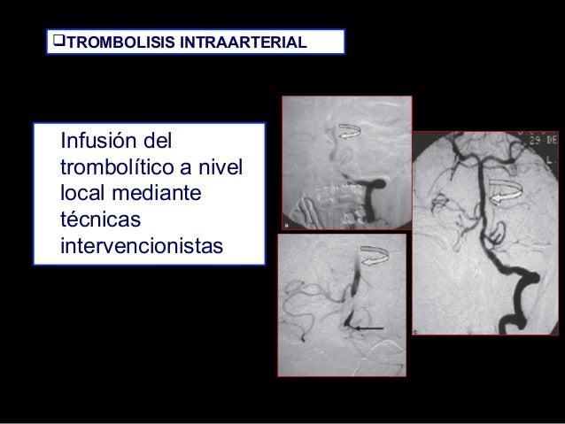 TROMBOLISIS INTRAARTERIAL  Infusión del trombolítico a nivel local mediante técnicas intervencionistas