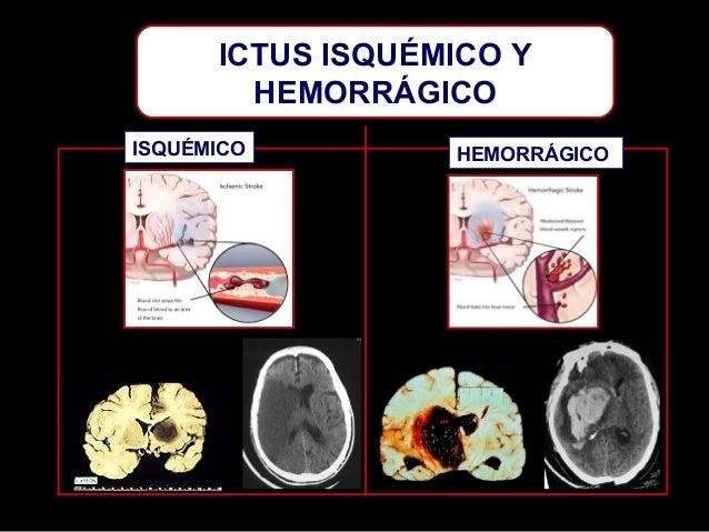 ICTUS ISQUÉMICO Y HEMORRÁGICO ISQUÉMICO  HEMORRÁGICO
