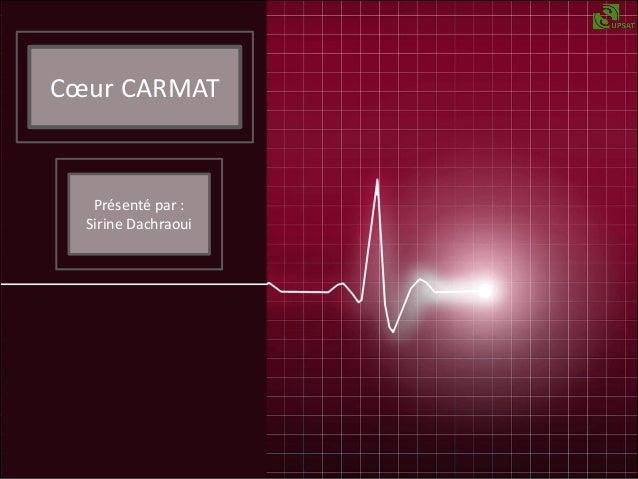 Cœur CARMAT  Présenté par : Sirine Dachraoui