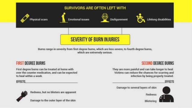 Fiery Facts About Burn Injuries Slide 2