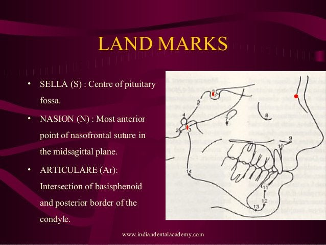 LAND MARKS • SELLA (S) : Centre of pituitary fossa. • NASION (N) : Most anterior point of nasofrontal suture in the midsag...