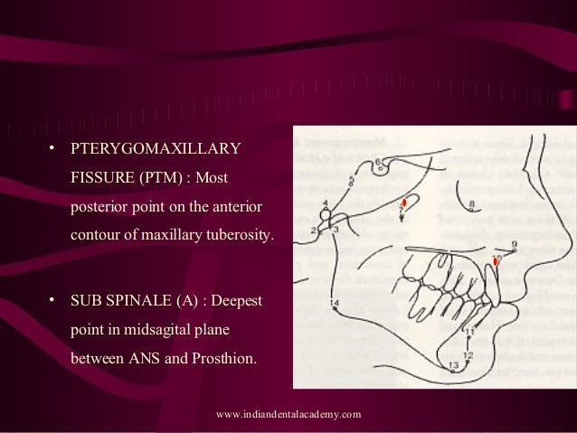 • PTERYGOMAXILLARY FISSURE (PTM) : Most posterior point on the anterior contour of maxillary tuberosity. • SUB SPINALE (A)...