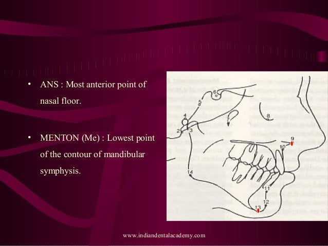 • ANS : Most anterior point of nasal floor. • MENTON (Me) : Lowest point of the contour of mandibular symphysis. www.india...