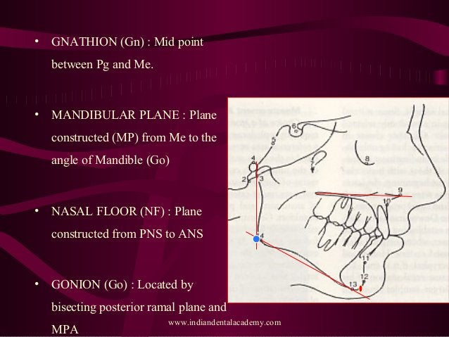 • GNATHION (Gn) : Mid point between Pg and Me. • MANDIBULAR PLANE : Plane constructed (MP) from Me to the angle of Mandibl...