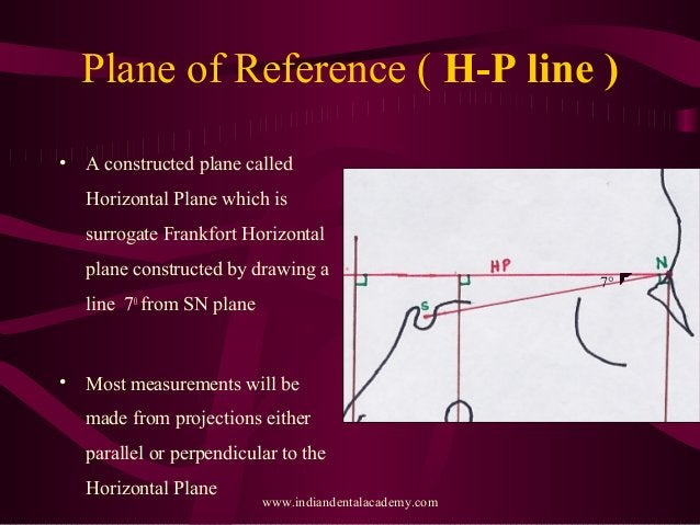 Plane of Reference ( H-P line ) • A constructed plane called Horizontal Plane which is surrogate Frankfort Horizontal plan...