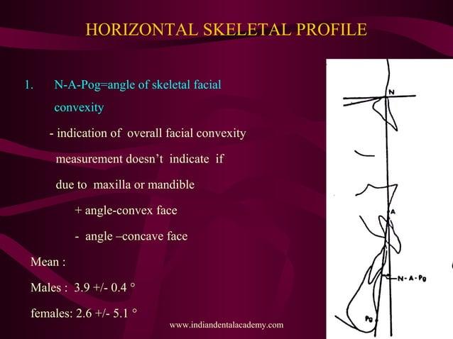 HORIZONTAL SKELETAL PROFILE 1. N-A-Pog=angle of skeletal facial convexity - indication of overall facial convexity measure...
