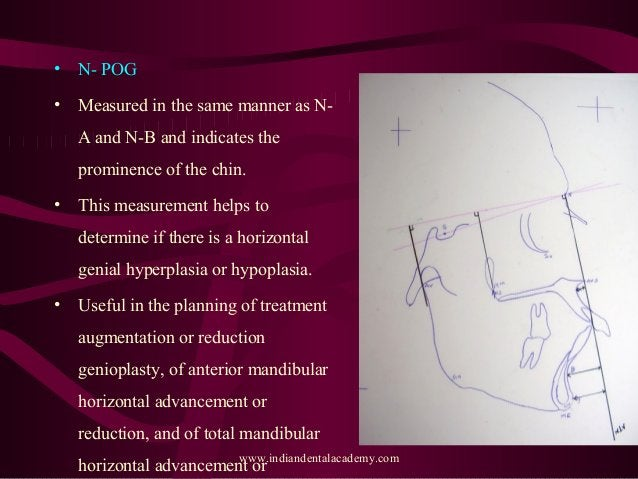 • N- POG • Measured in the same manner as N- A and N-B and indicates the prominence of the chin. • This measurement helps ...