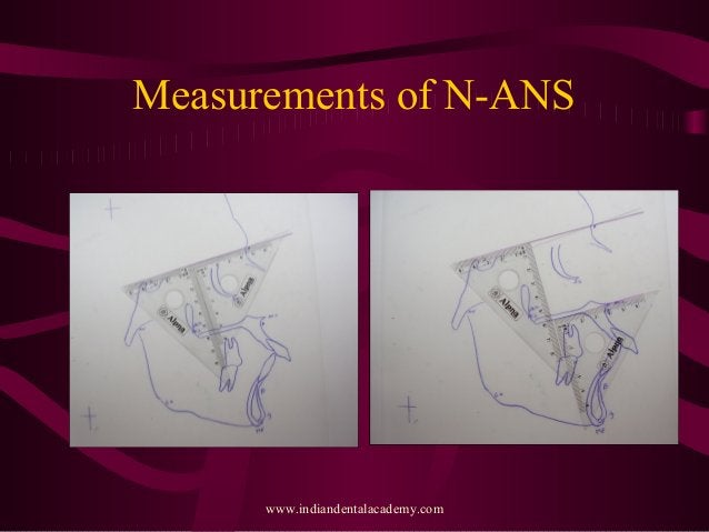Measurements of N-ANS www.indiandentalacademy.com