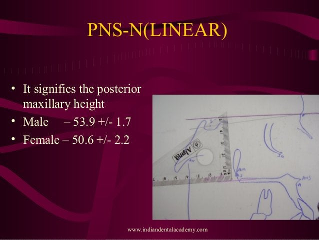 PNS-N(LINEAR) • It signifies the posterior maxillary height • Male – 53.9 +/- 1.7 • Female – 50.6 +/- 2.2 www.indiandental...