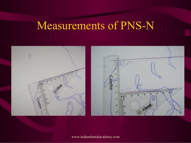 Measurements of PNS-N www.indiandentalacademy.com