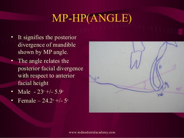 MP-HP(ANGLE) • It signifies the posterior divergence of mandible shown by MP angle. • The angle relates the posterior faci...