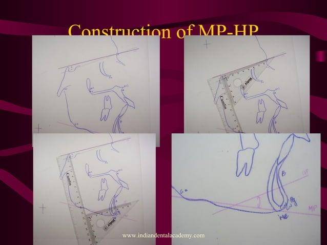 Construction of MP-HP www.indiandentalacademy.com