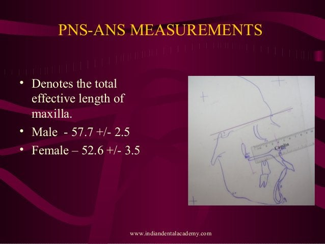 PNS-ANS MEASUREMENTS • Denotes the total effective length of maxilla. • Male - 57.7 +/- 2.5 • Female – 52.6 +/- 3.5 www.in...