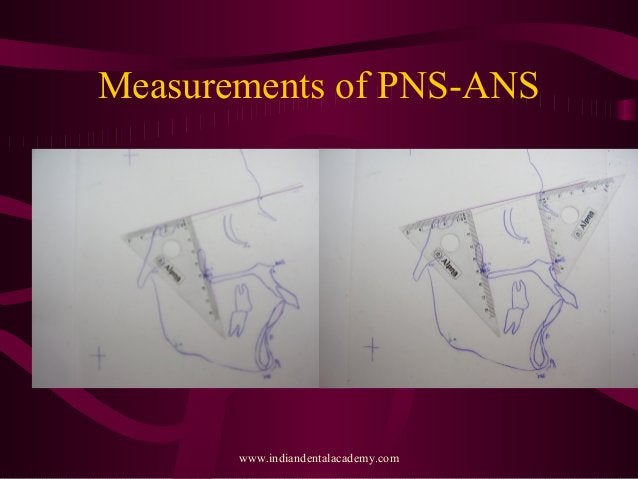 Measurements of PNS-ANS www.indiandentalacademy.com