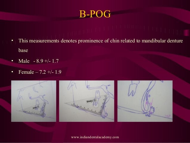 B-POG • This measurements denotes prominence of chin related to mandibular denture base • Male - 8.9 +/- 1.7 • Female – 7....