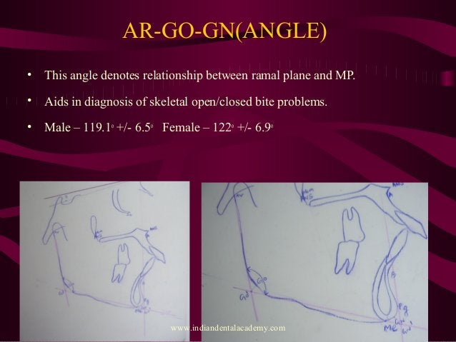 AR-GO-GN(ANGLE) • This angle denotes relationship between ramal plane and MP. • Aids in diagnosis of skeletal open/closed ...