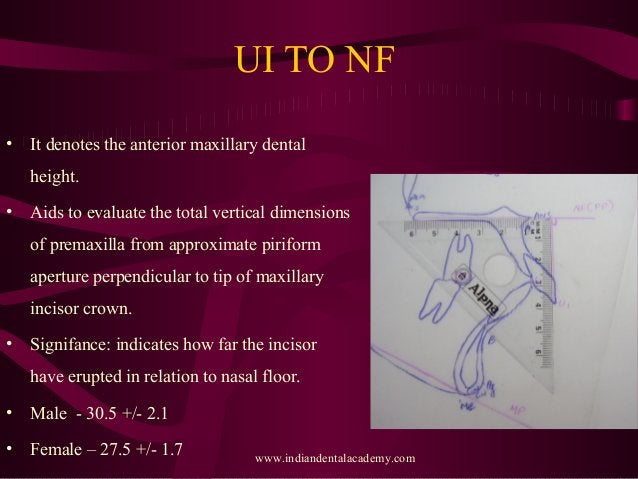UI TO NF • It denotes the anterior maxillary dental height. • Aids to evaluate the total vertical dimensions of premaxilla...