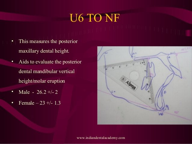 U6 TO NF • This measures the posterior maxillary dental height. • Aids to evaluate the posterior dental mandibular vertica...