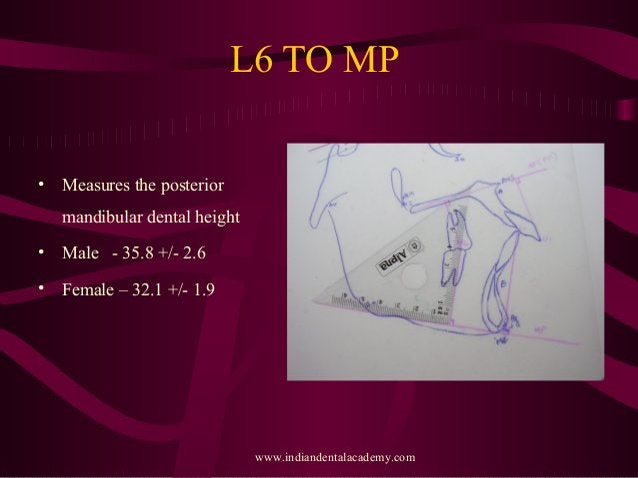 L6 TO MP • Measures the posterior mandibular dental height • Male - 35.8 +/- 2.6 • Female – 32.1 +/- 1.9 www.indiandentala...