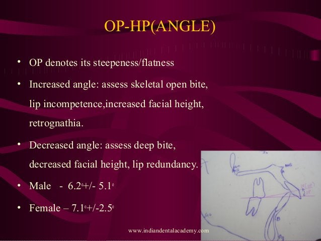OP-HP(ANGLE) • OP denotes its steepeness/flatness • Increased angle: assess skeletal open bite, lip incompetence,increased...