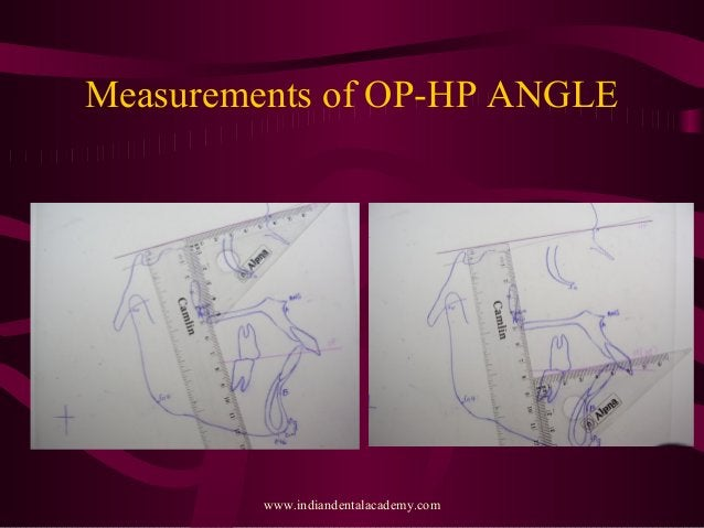 Measurements of OP-HP ANGLE www.indiandentalacademy.com