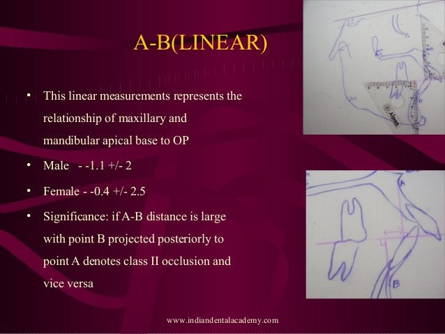 A-B(LINEAR) • This linear measurements represents the relationship of maxillary and mandibular apical base to OP • Male - ...