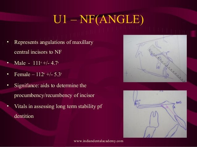 U1 – NF(ANGLE) • Represents angulations of maxillary central incisors to NF • Male - 111o +/- 4.7o • Female – 112o +/- 5.3...