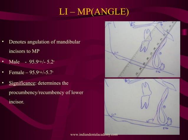 LI – MP(ANGLE) • Denotes angulation of mandibular incisors to MP • Male - 95.9o +/- 5.2o • Female – 95.9o +/-5.7o • Signif...