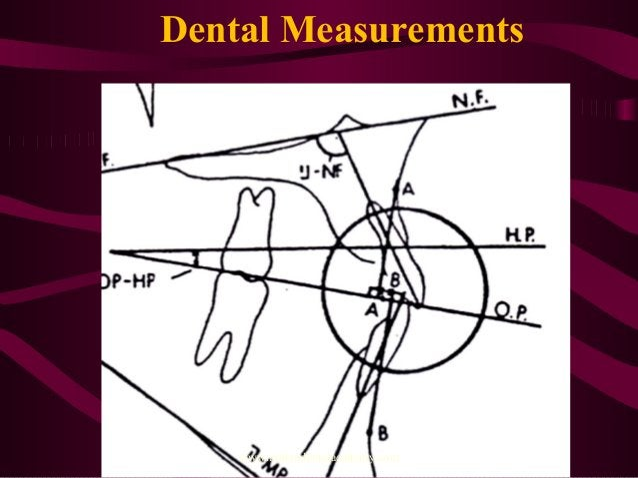 Dental Measurements www.indiandentalacademy.com