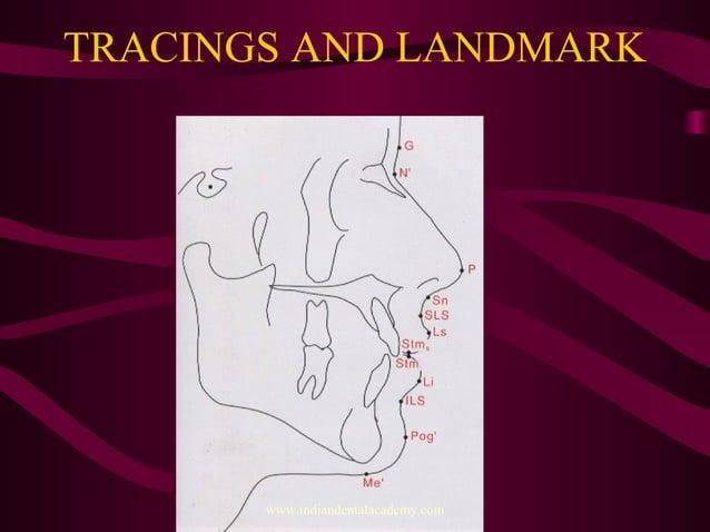 TRACINGS AND LANDMARK www.indiandentalacademy.com