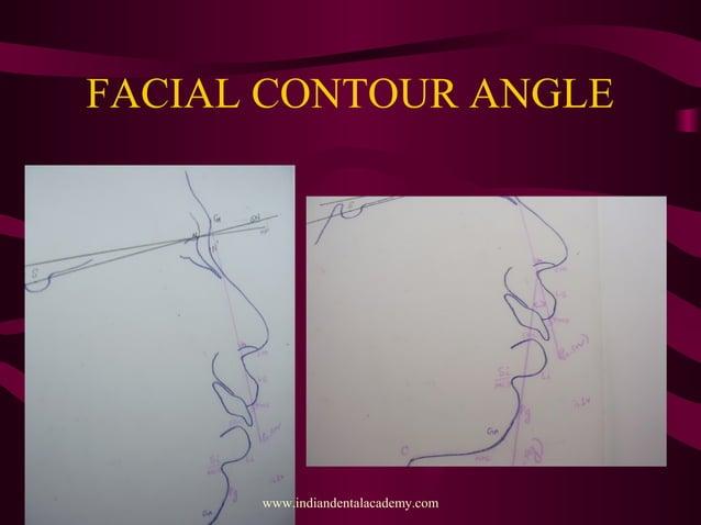 FACIAL CONTOUR ANGLE www.indiandentalacademy.com