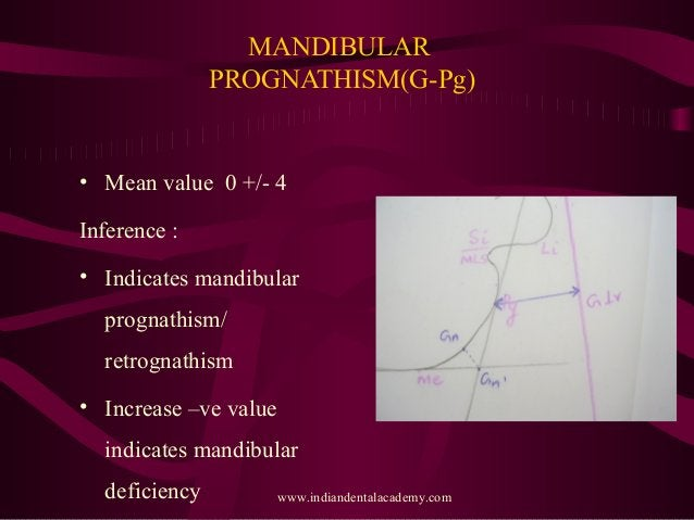 MANDIBULAR PROGNATHISM(G-Pg) • Mean value 0 +/- 4 Inference : • Indicates mandibular prognathism/ retrognathism • Increase...