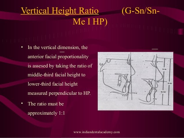Vertical Height Ratio (G-Sn/Sn- Me I HP) • In the vertical dimension, the anterior facial proportionality is assesed by ta...