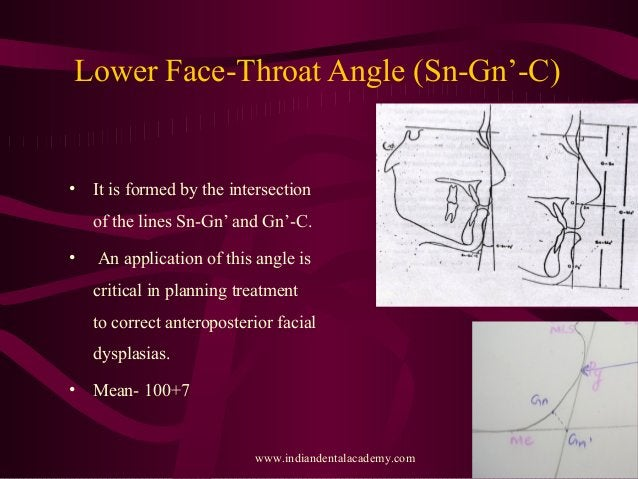 Lower Face-Throat Angle (Sn-Gn'-C) • It is formed by the intersection of the lines Sn-Gn' and Gn'-C. • An application of t...