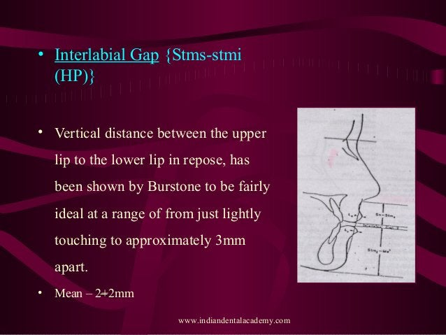 • Interlabial Gap {Stms-stmi (HP)} • Vertical distance between the upper lip to the lower lip in repose, has been shown by...