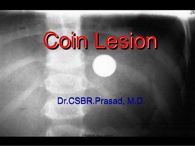 Coin Lesion Dr.CSBR.Prasad, M.D.      CSBRP-Dec-2012