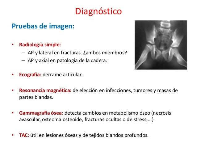Los dolores cerca de la columna vertebral de la parte izquierda cerca de los riñones