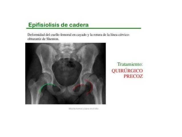 Duele la parte inferior del vientre da a la derecha en la espalda
