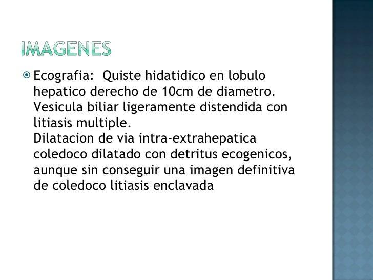 <ul><li>Ecografia:  Quiste hidatidico en lobulo hepatico derecho de 10cm de diametro.  Vesicula biliar ligeramente distend...