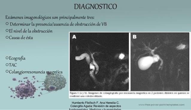 DIAGNOSTICO Humberto Flisfisch F. Ana Heredia C. Colangitis Aguda: Revisión de aspectos Exámenes imagenológicos son princi...