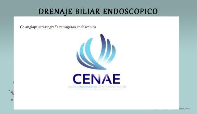 DRENAJE BILIAR ENDOSCOPICO Colangiopancreatografía retrograda endoscopica