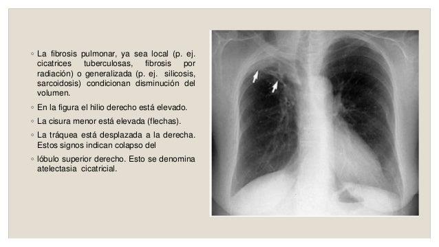 Colapso Pulmonar