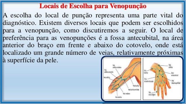 As veias desta localização variam de pessoa para pessoa, entretanto, há dois tipos comuns de regimes de distribuição venos...
