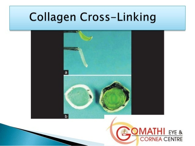 effect of cross linkers on the resistance of dentin collagen Various strategies have been proposed to improve the durability of resin-dentin bond including the use of matrix metalloproteinases inhibitors and collagen cross-linkers, biomimetic remineralization, ethanol wet bonding, to improve the physical and mechanical properties of the bonding substrate, ie, dentin.