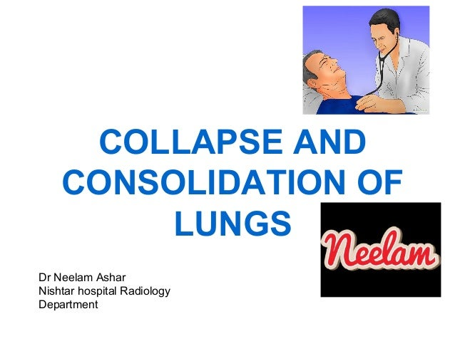 COLLAPSE AND CONSOLIDATION OF LUNGS Dr Neelam Ashar Nishtar hospital Radiology Department