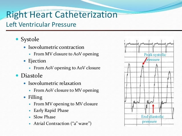 Collection Of Cath Tracings By Navin